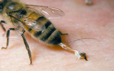 Alergia y apicultura
